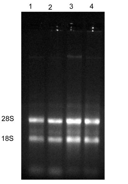 RNA GEL.tif