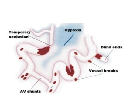 angiogenesis_1.jpg